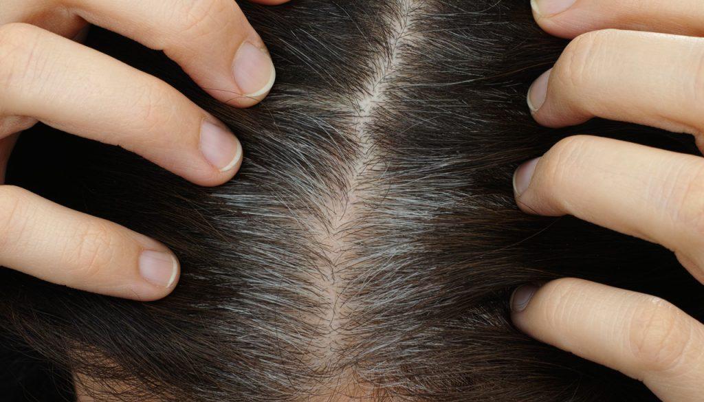 Haarverlies bij vrouwen - de waarheden en mythes onthuld